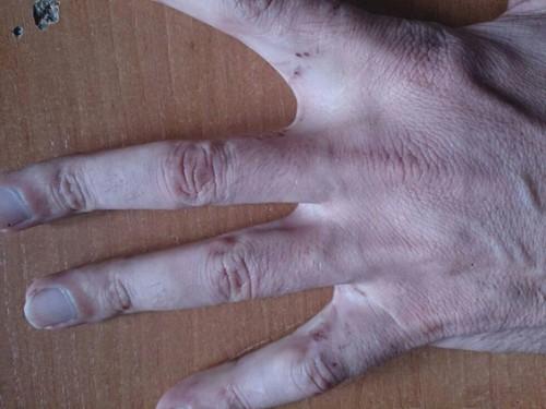 Рука Умара Болтиева. Отчетливо видны электрометки — следы от пытки током